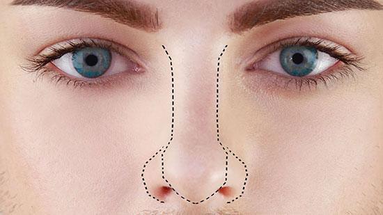 فرم دهی بینی بدون جراحی و هرآنچه باید بدانید