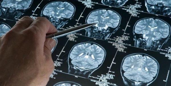 سکته مغزی در کرونایی ها احتمال مرگ را 3 برابر بیشتر می کند